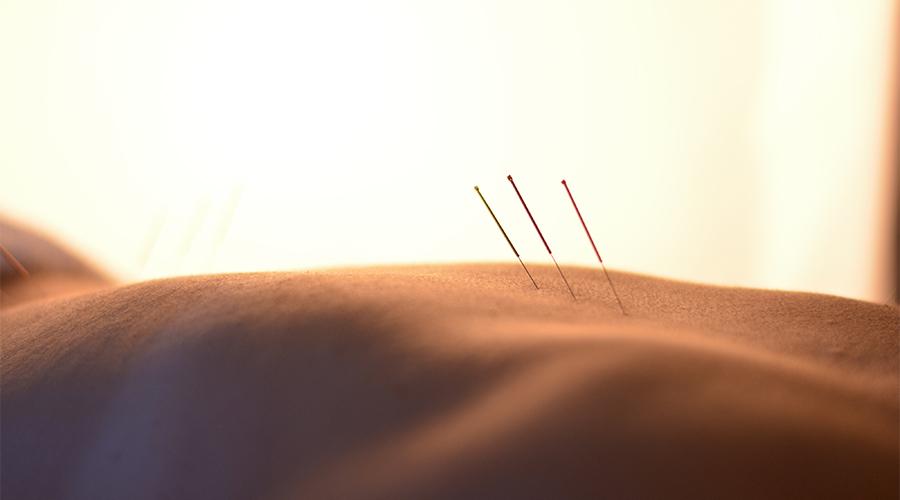 acupuntura benestar benetusser valencia